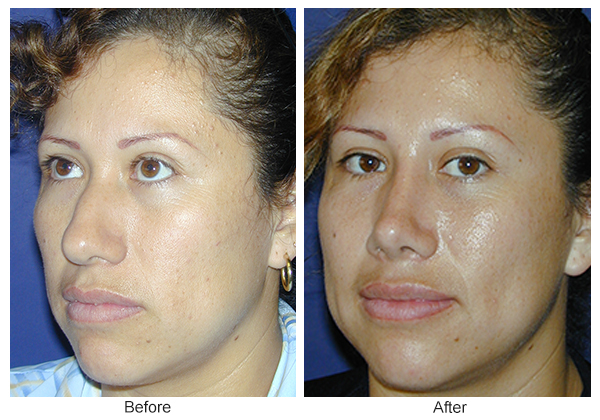 Before and After Rhinoplasty 10 – LQ