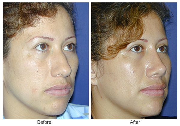 Before and After Rhinoplasty 10 – RQ