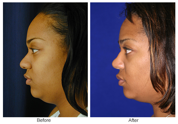 Before and After Rhinoplasty 15 – L