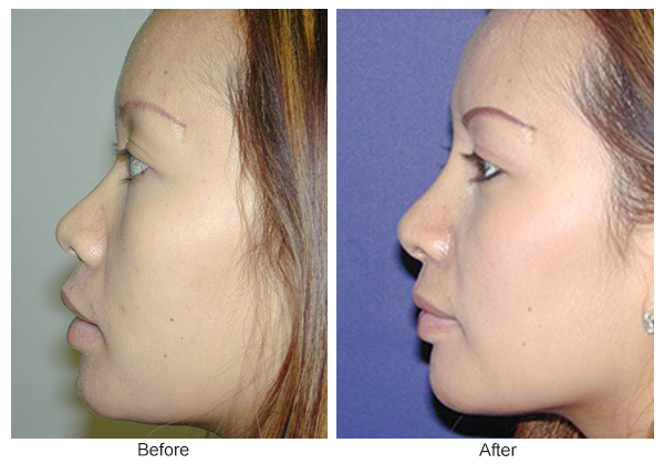 Before and After Rhinoplasty 17 – L