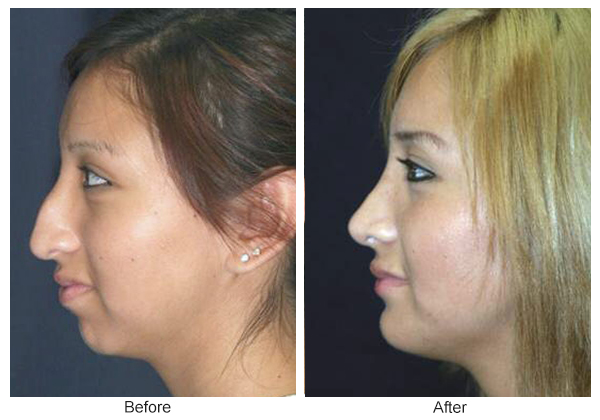 Before and After Rhinoplasty 3 – L