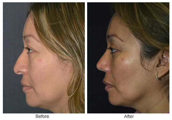 Before and After Rhinoplasty 6 – L