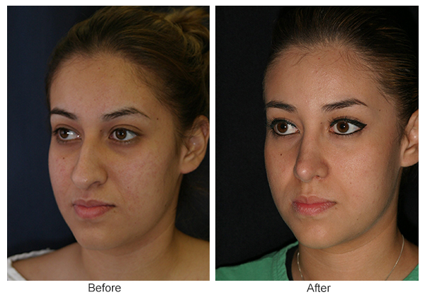 Before and After Rhinoplasty 7 – LQ