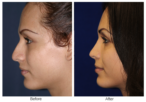 Before and After Rhinoplasty 8 – L