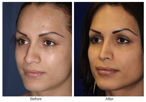 Before and After Rhinoplasty 8 – LQ