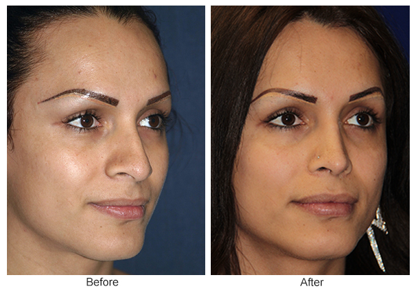 Before and After Rhinoplasty 8 – RQ