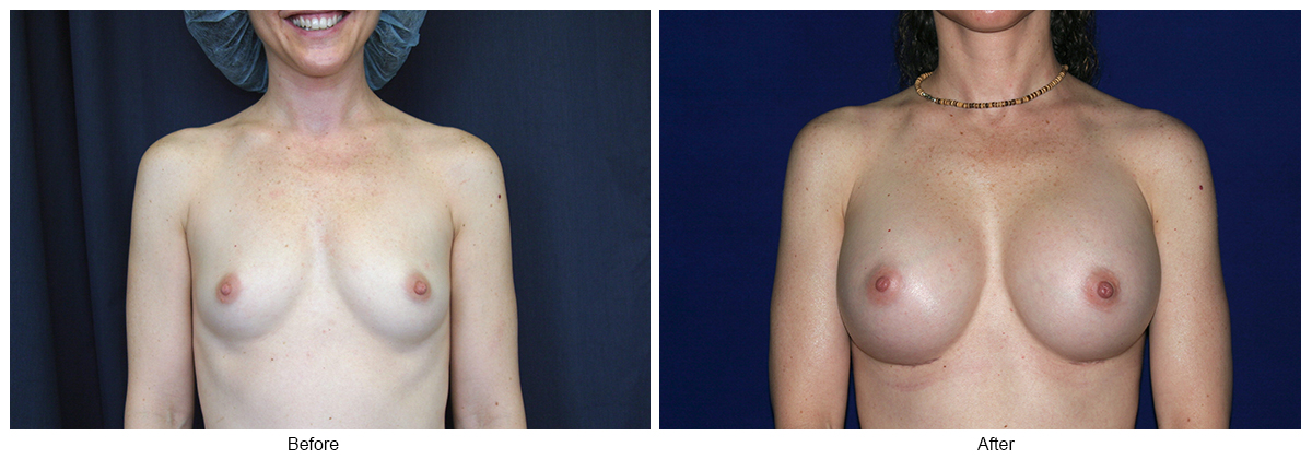 Before & After Breast Augmentation 1 – Front