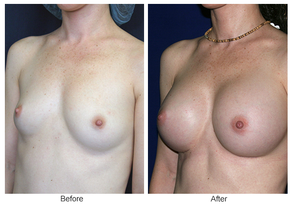 Before & After Breast Augmentation 1 – LQ