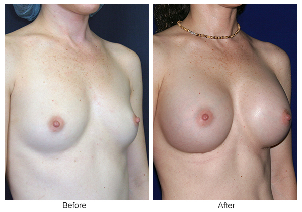 Before & After Breast Augmentation 1 – RQ