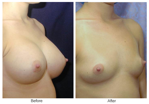 Before & After Breast Augmentation 12 – RQ