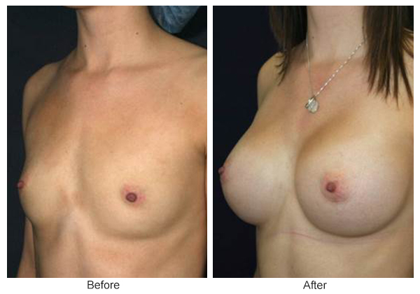 Before & After Breast Augmentation 2 – LQ