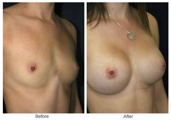 Before & After Breast Augmentation 2 – RQ