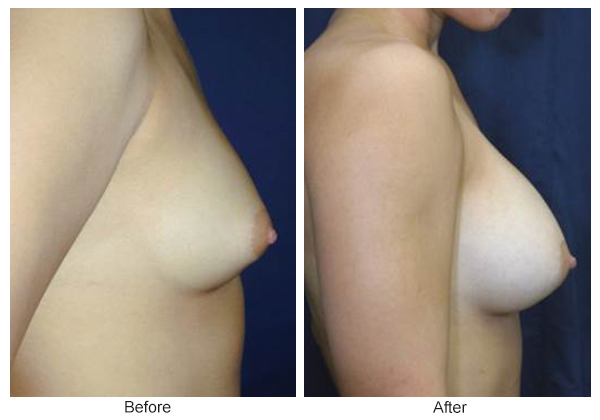 Before & After Breast Augmentation 3 – Right