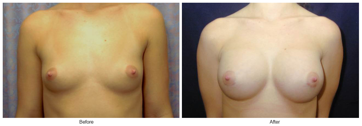 Before & After Breast Augmentation 4 – Front