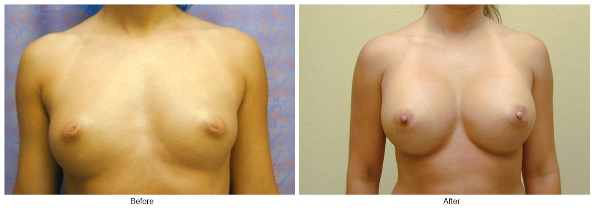 Before & After Breast Augmentation 5 – Front