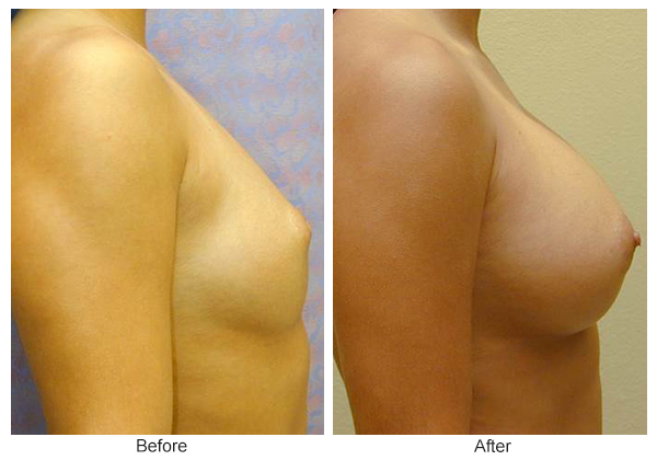 Before & After Breast Augmentation 5 – Right