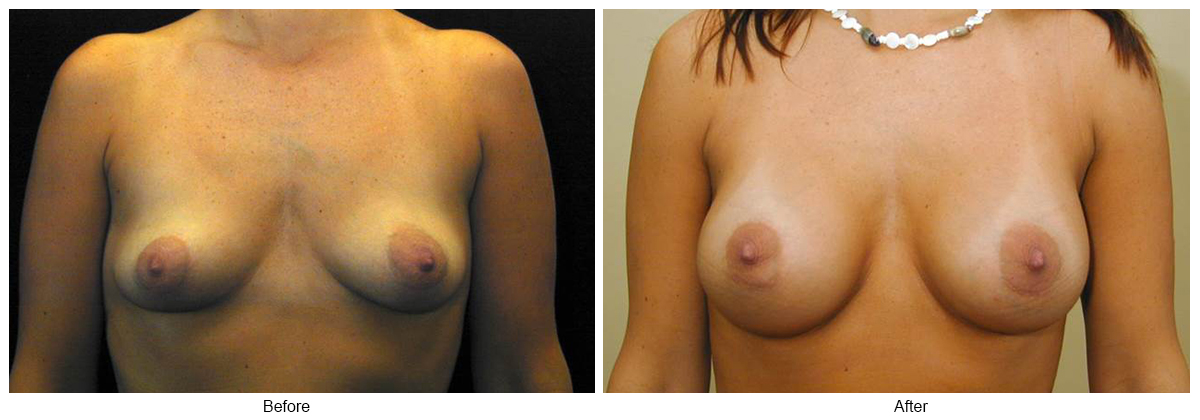 Before & After Breast Augmentation 6 – Front