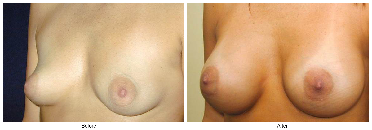 Before & After Breast Augmentation 6 – LQ