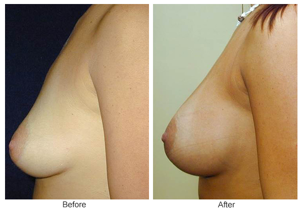Before & After Breast Augmentation 6 – Left