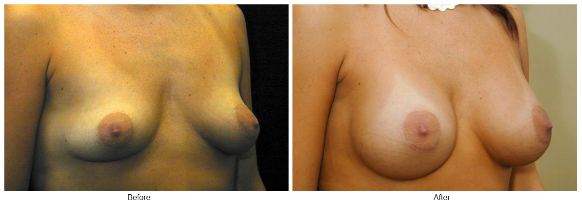 Before & After Breast Augmentation 6 – RQ