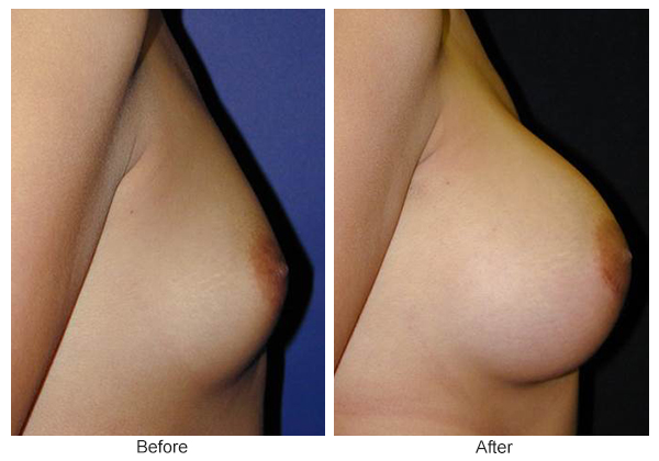 Before & After Breast Augmentation 7 – Right