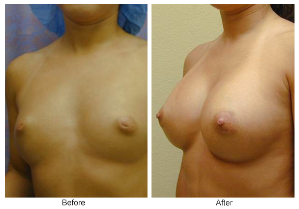 Before and After Breast Augmentation 5 – LQ