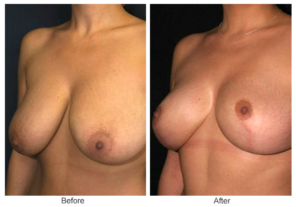 Before and After Breast Reduction 1 – LQ