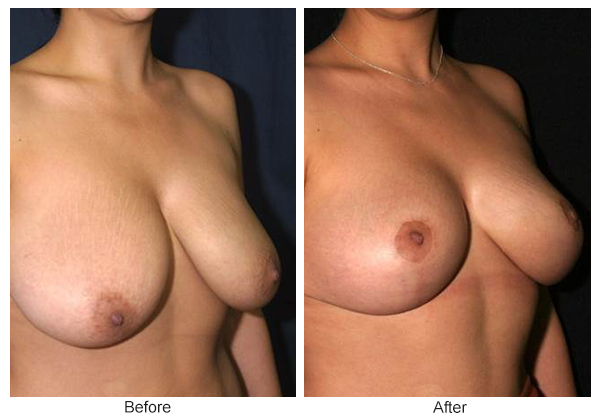 Before and After Breast Reduction 1 – RQ