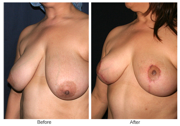 Before and After Breast Reduction 2 – LQ