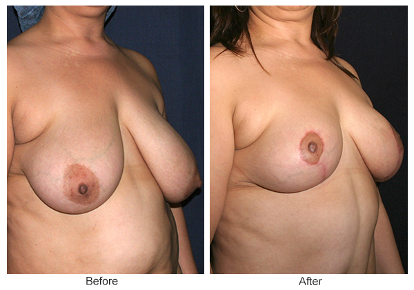 Before and After Breast Reduction 2 – RQ
