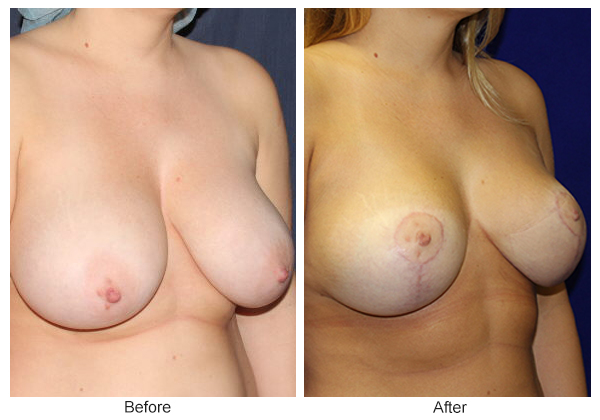 Before and After Breast Reduction 3 – RQ