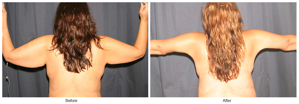 Before & After Arm Lift 2