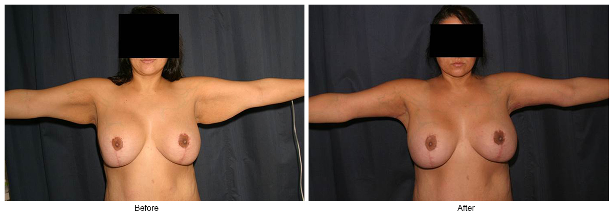 Before & After Arm Lift 5