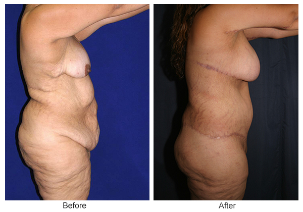 Before & After Body Lift 1 – Right