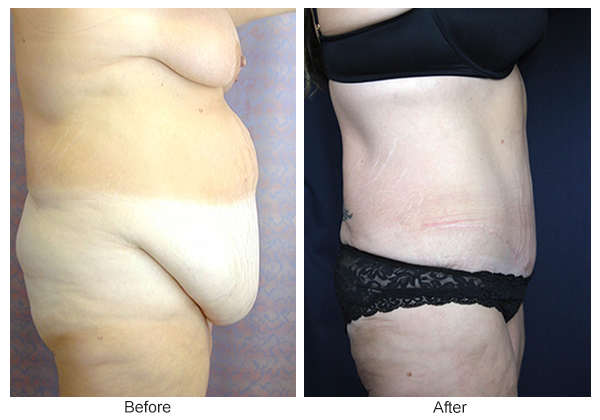 Before & After Body Lift 2 – Right