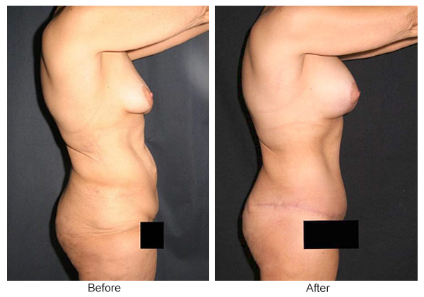 Before & After Body Lift 3 – Right