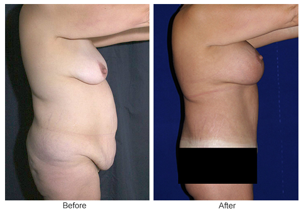 Before & After Body Lift 4 – Right