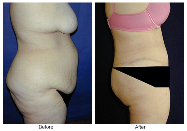 Before & After Body Lift 5 – Right