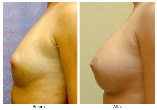 Before & After Breast Augmentation 5 – Left