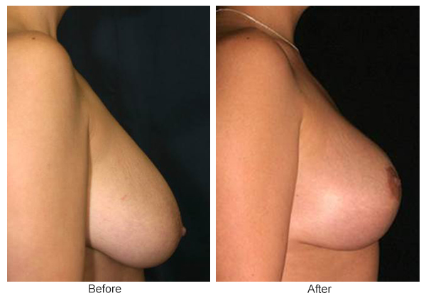 Before & After Breast Reduction 1 – Right