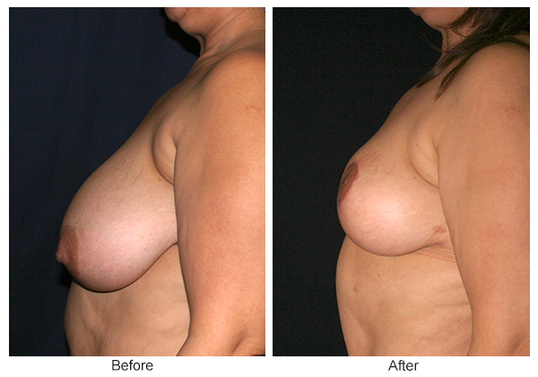 Before & After Breast Reduction 2 – Left