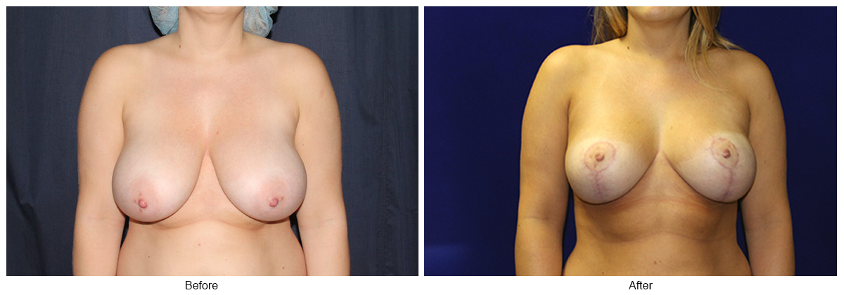 Before & After Breast Reduction 3 – Front