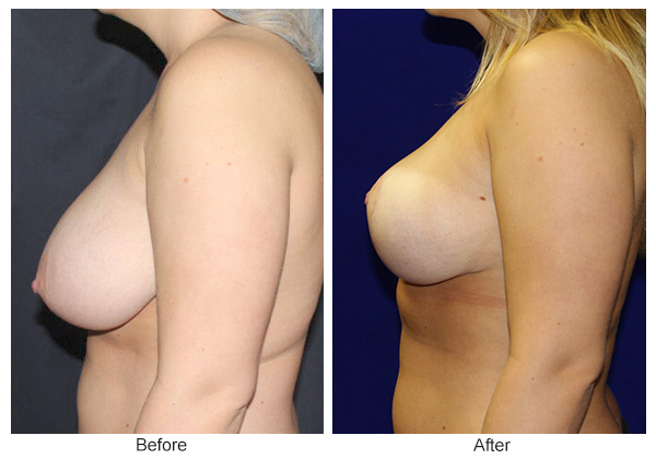 Before & After Breast Reduction 3 – Left