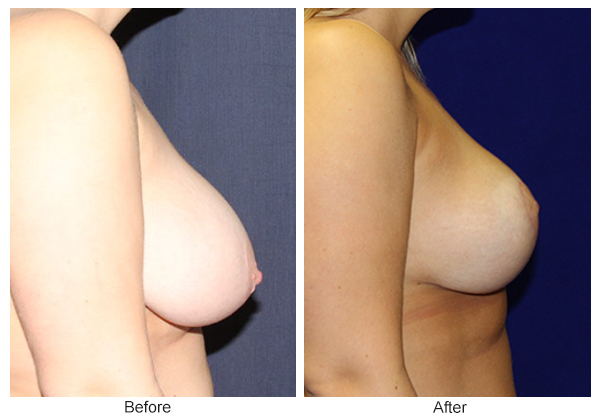 Before & After Breast Reduction 3 – Right