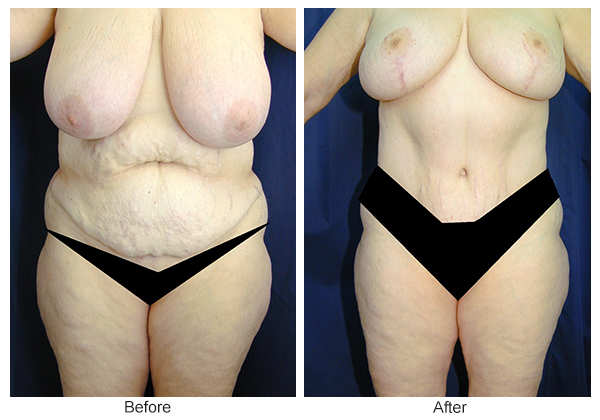 Before & After Breast Reduction 4 – Front