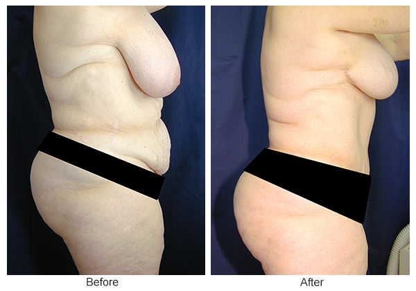 Before & After Breast Reduction 4 – Right