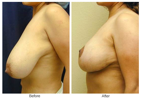 Before & After Breast Reduction 5 – Left