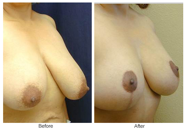 Before & After Breast Reduction 5 – Right