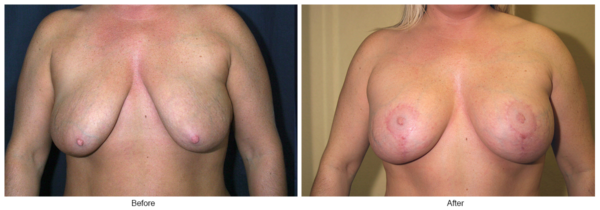 Before & After Breast Reduction 6 – Front