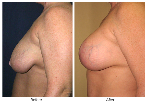Before & After Breast Reduction 6 – Left